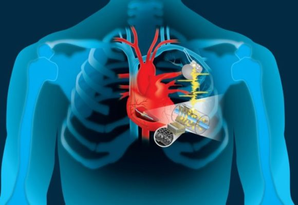 Вечный «мотор»: энергию сердца можно использовать для подзарядки кардиостимуляторов